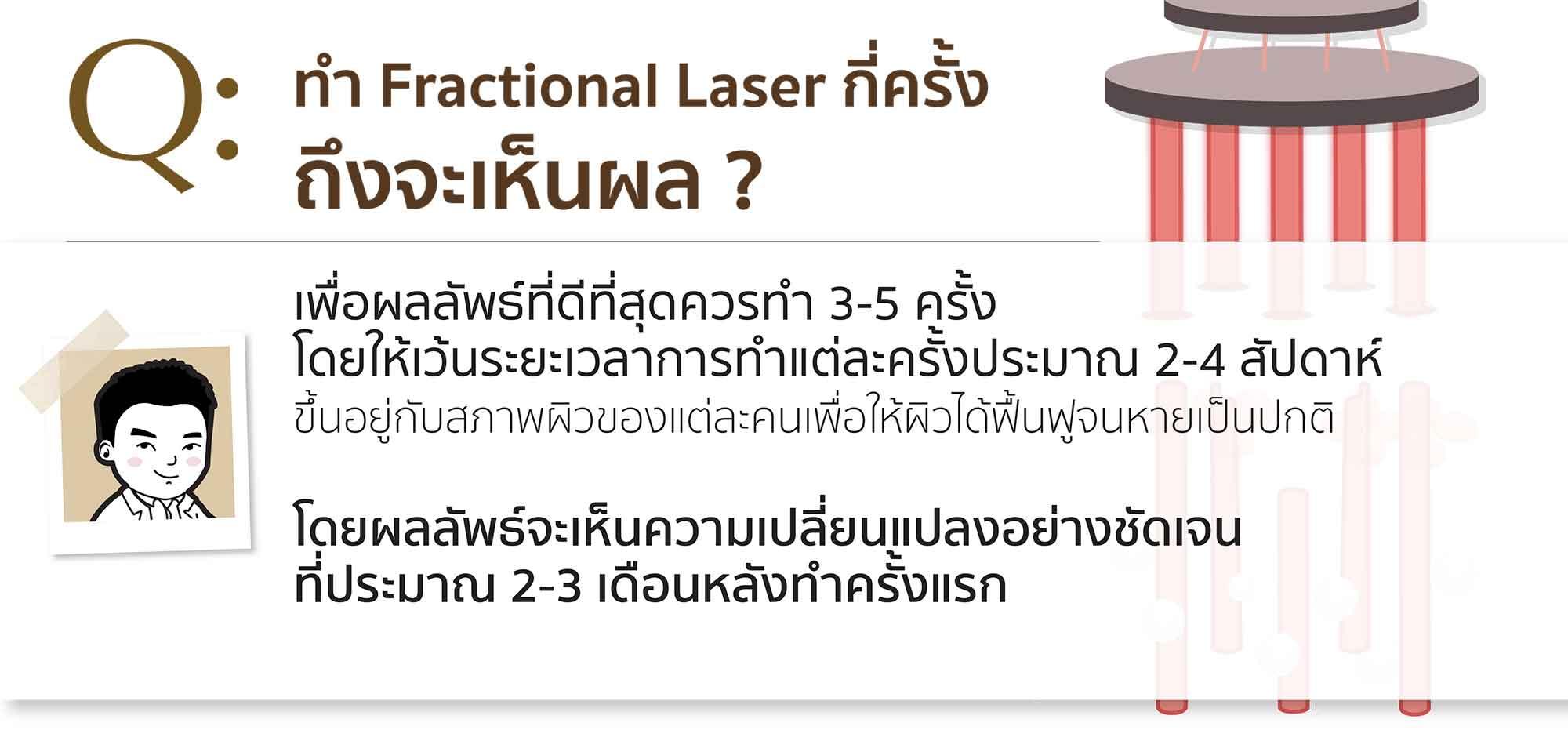 Q&A_laser