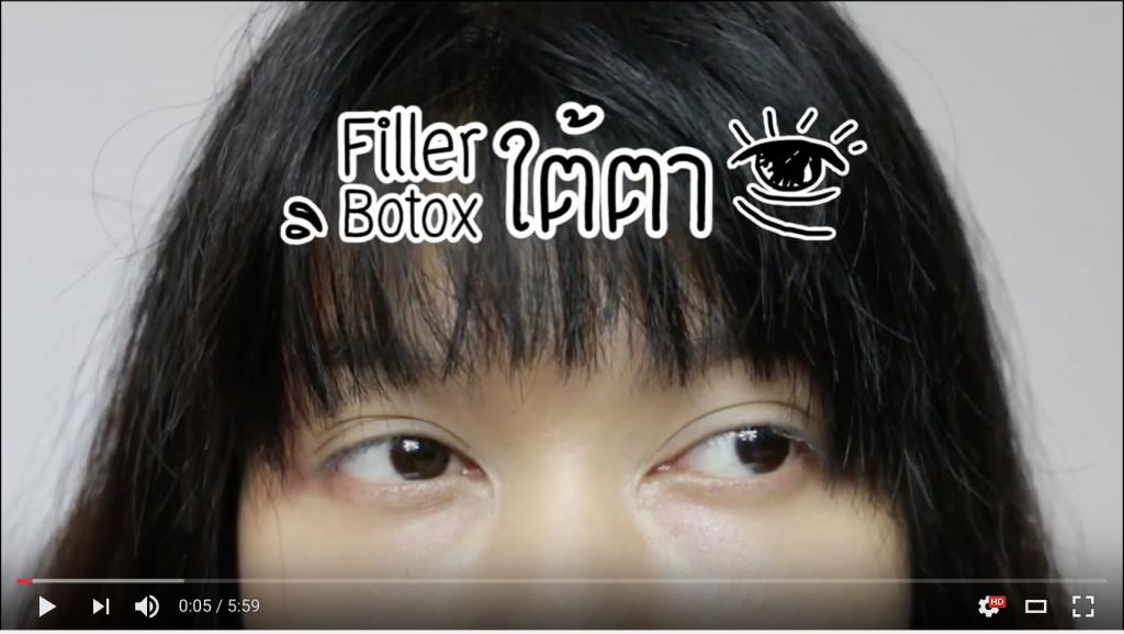 QA Filler Botox ใต้ตา