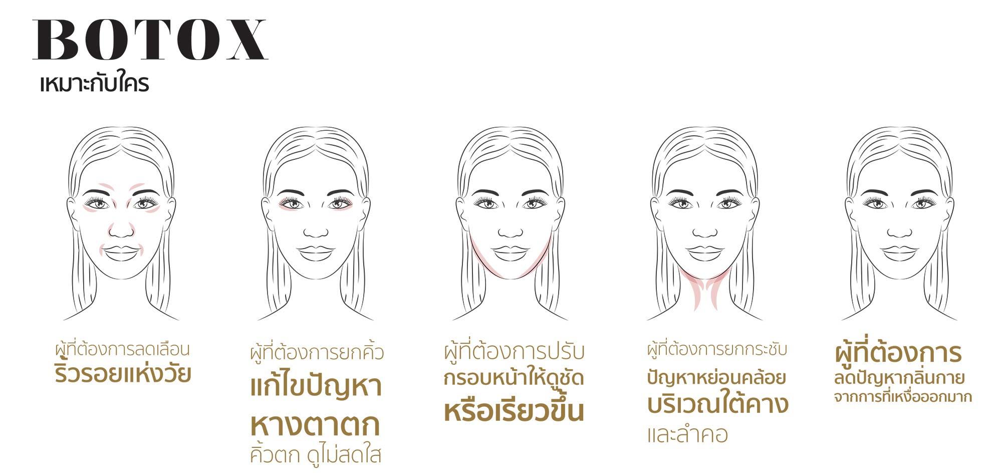 AW2-Botox