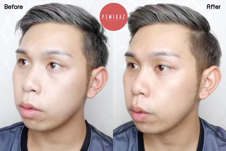 filler-mesofat-drtony-beauty-clinic1