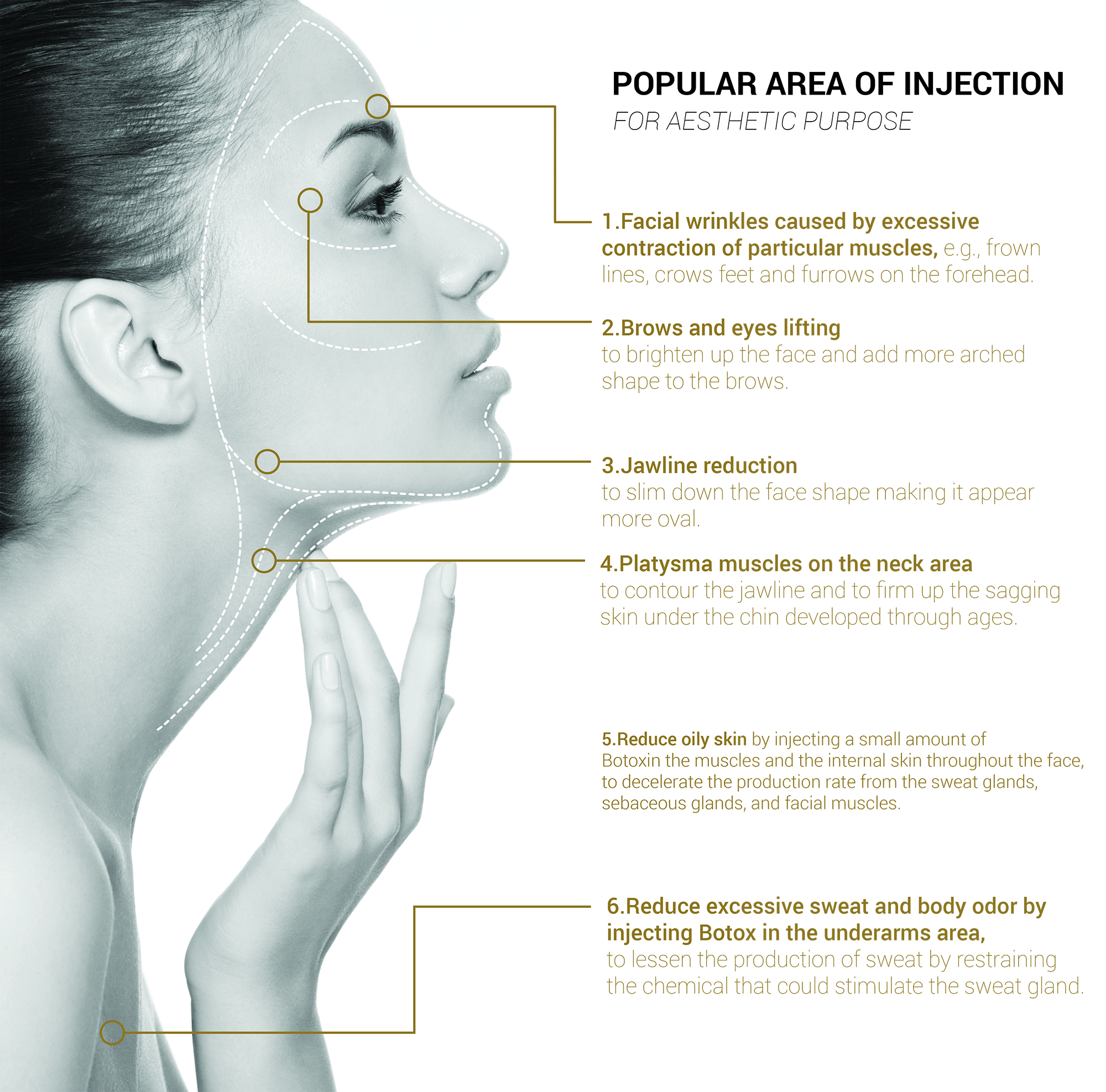 Popular Area of Injection for Aesthetic Purpose