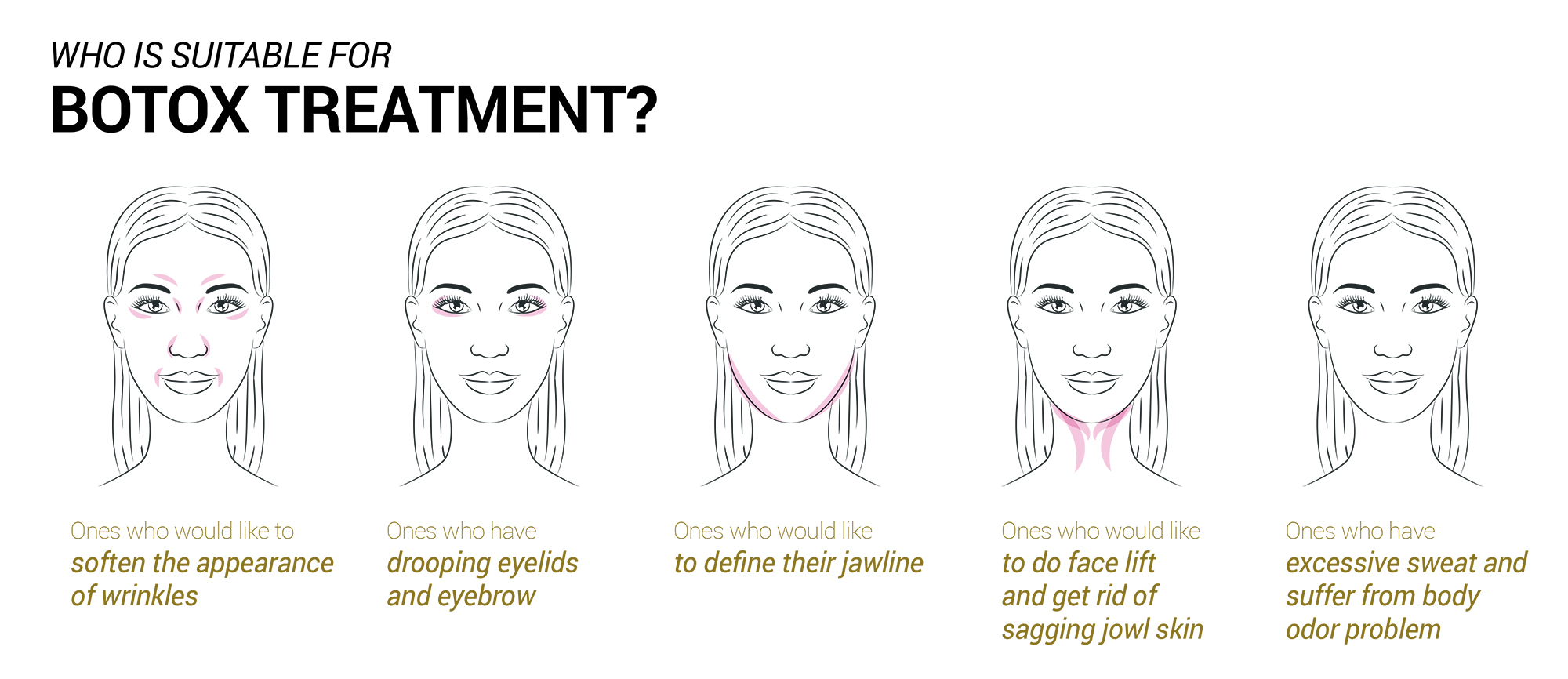 Who is Suitable for Botox Treatment