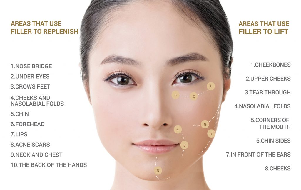 Areas that use filler