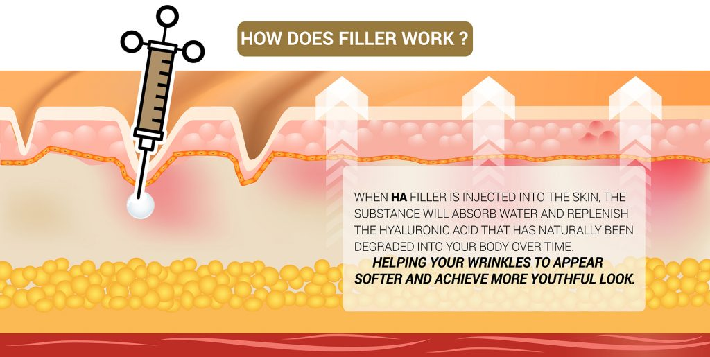 How does filler work