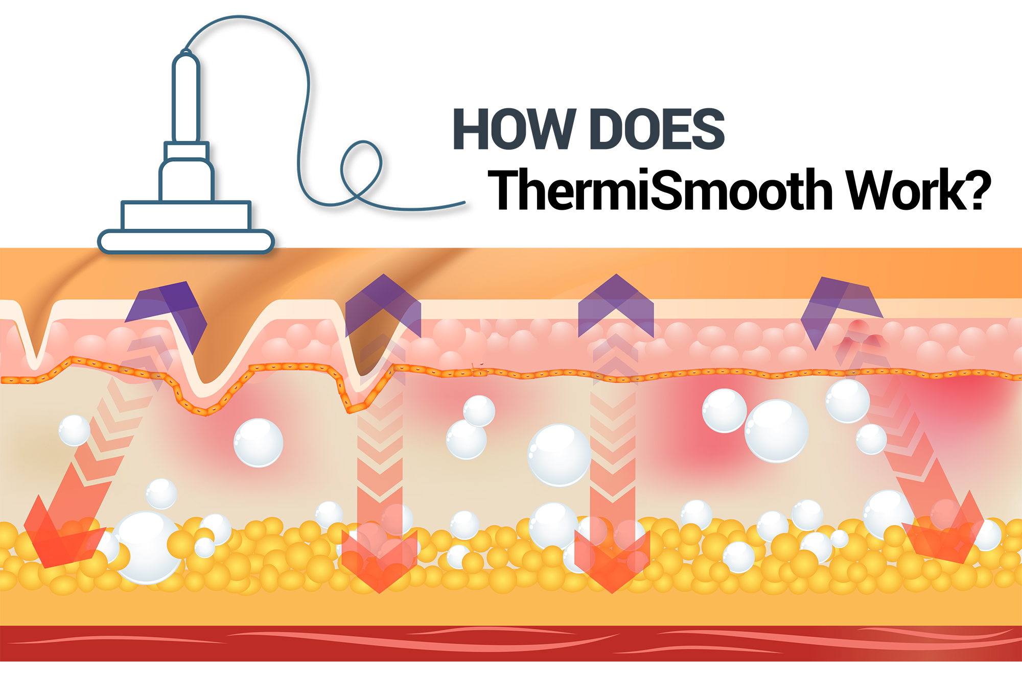 How Does ThermiSmooth Work