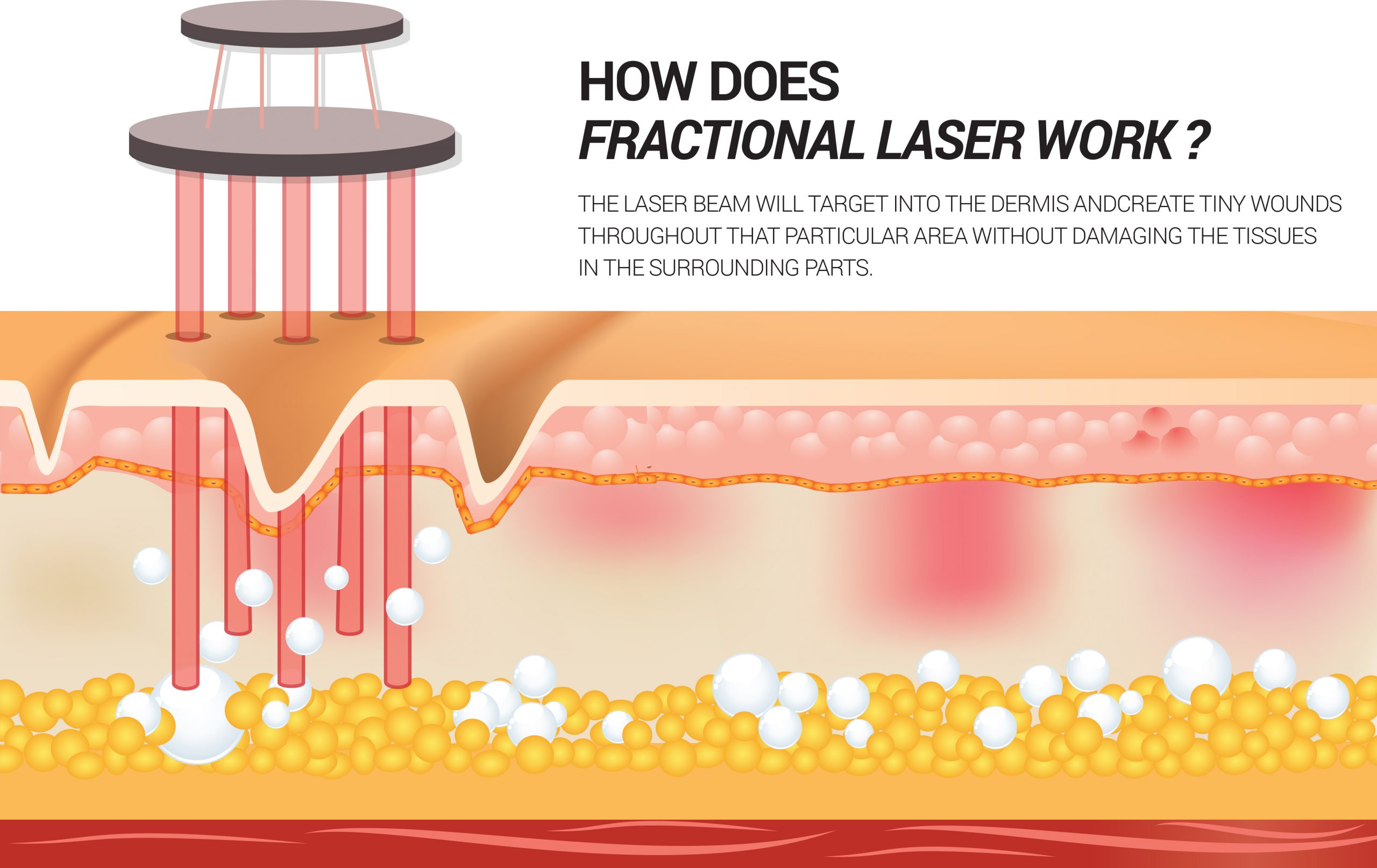 How does Fractional Laser work