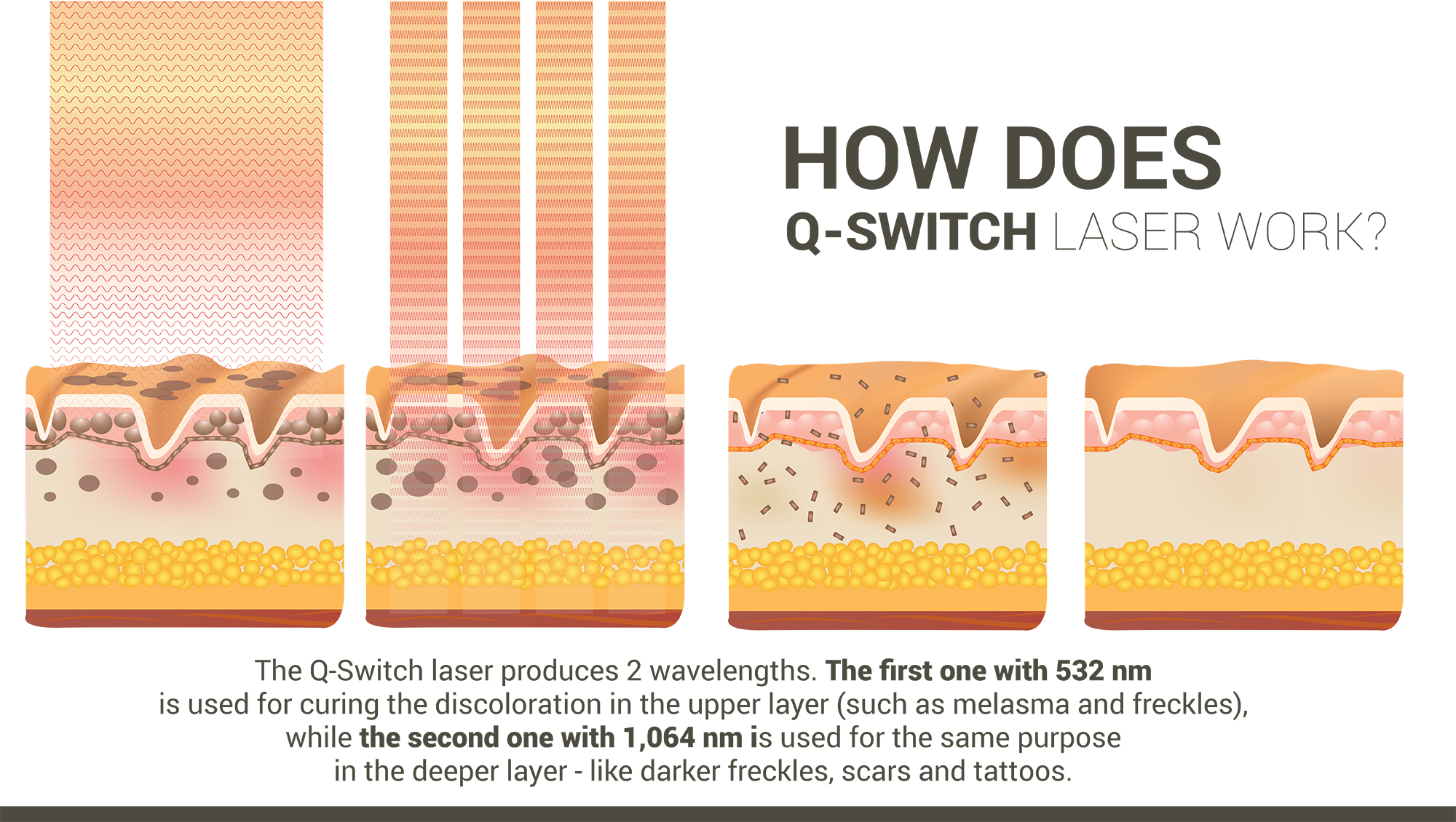How does Q-Switch Laser work