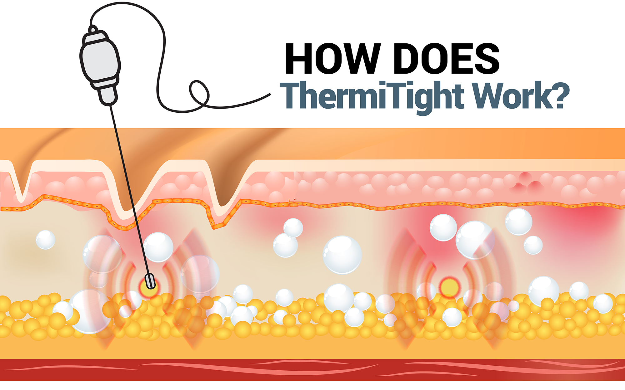 How does ThermiTight work?